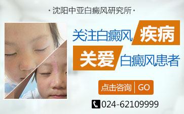 沈阳白斑治疗好的医院讲解儿童白斑怎么治疗康复的快